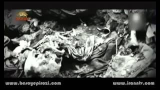 زیر ذره بین - نمایشگاهی که از دردی تاریخی میگوید