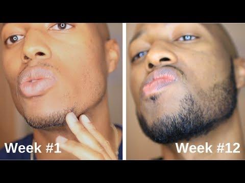 Minoxidil Beard Journey: