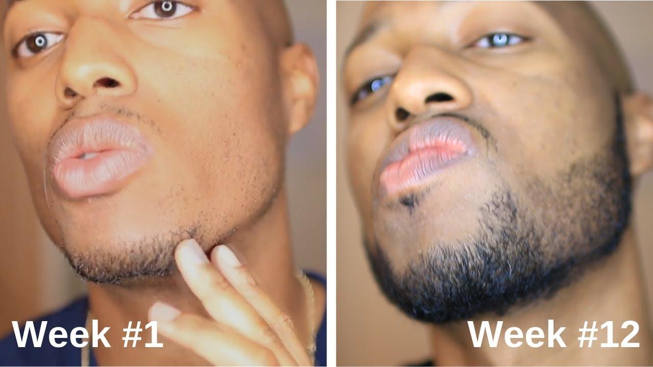 Minoxidil Beard Journey: 3 Month Transformation - YouTube