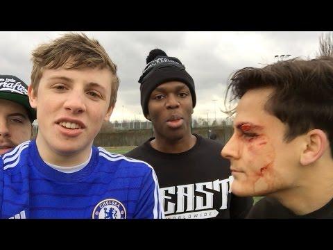 FOOTBALL INJURY!! - SIDEMEN VLOG