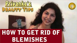HOW TO GET RID OF BLEMISHES Thumbnail
