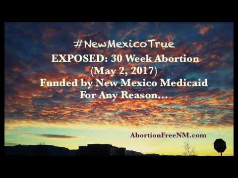 Exposed 30 Week Late Term Abortion New Mexico