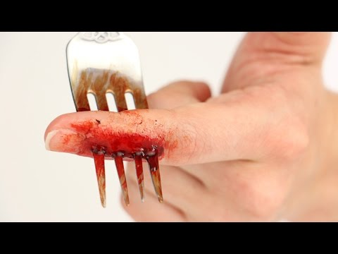 FX Series: I Have a Fork in My Finger!