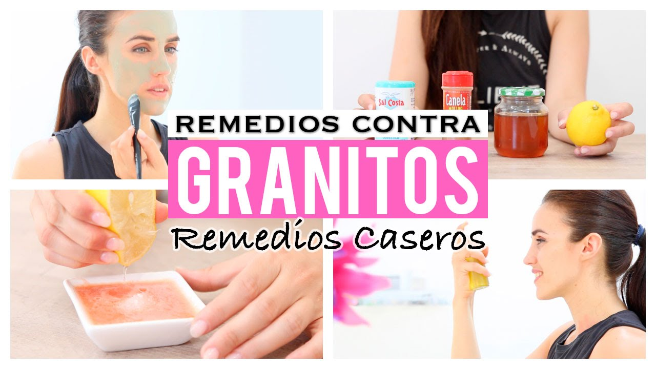5 Remedios Caseros Para Eliminar Los Granitos Youtube