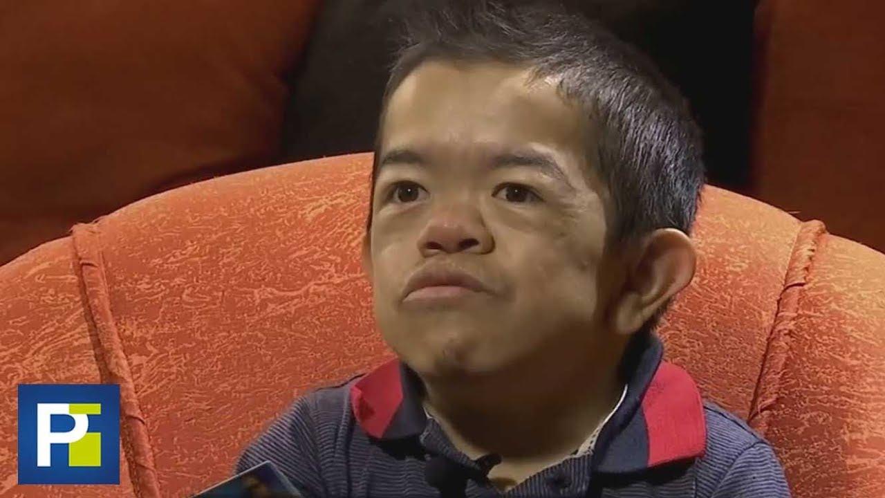 """Conquistó la fama como """"el hombre más pequeño del mundo"""", pero asegura que se olvidaron de"""