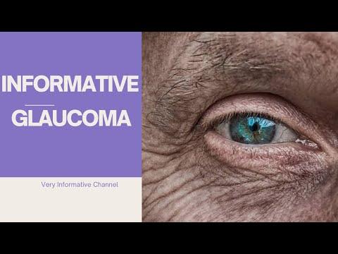 GLAUCOMA- | GLAUCOMA TREATMENT PHARMACOLOGY | SURGERY | MEDICATION