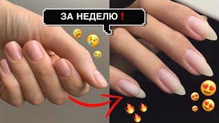 КАК ОТРАСТИТЬ ДЛИННЫЕ НОГТИ ЗА НЕДЕЛЮ Лучшие способы отращивания ногтей Секрет длинных ногтей