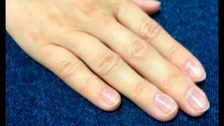 Как восстановить ногти: советы косметолога – Все буде добре. Выпуск 1106 от 17.10.17