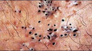 Самое залипательное видео давить прыщи Dermatologist video to press pimples Черные точки 008 shorts