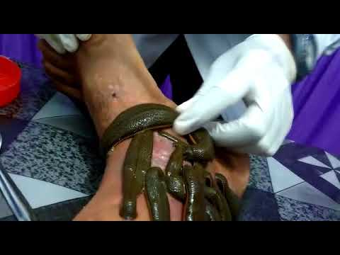 Leech therapy treatment in vericos ulcer by vaidya akshay chauhan noida