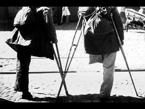 Инвалиды ВОВ - ненужные государству, ненужные обществу, ненужные самим себе...