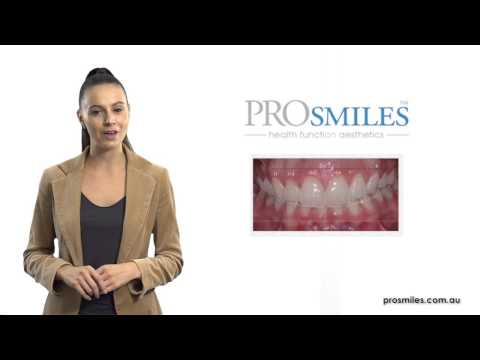 Digital Smile Analysis - ProSmiles Dental