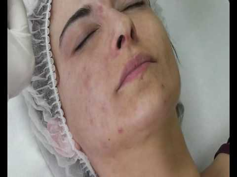 Treatment of  acne with Easy TCA 1