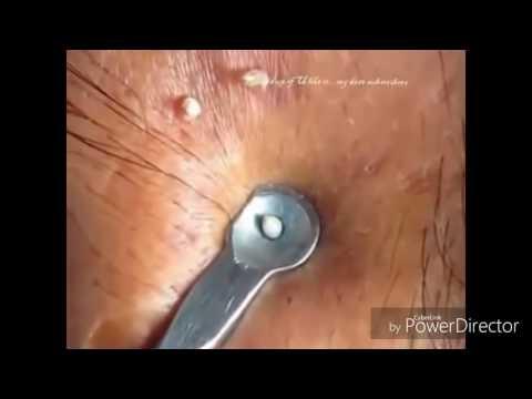 Blackhead /Whitehead Extraction like Dr vikram singh yadav /Dr Sandra lee