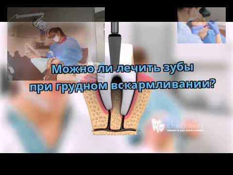 Можно ли лечить зубы при грудном вскармливании?