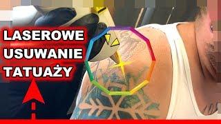 Laserowe usuwanie tatuaży by Sajlas INK | Projekt INK