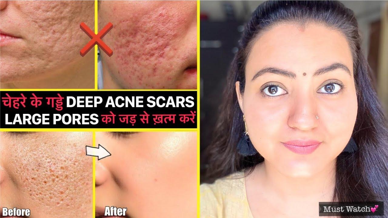 कितने भी पुराने गड्ढे LARGE PORES, DEEP ACNE SCARS हों चेहरे पर, इस Remedy से होगा 100% फायदा