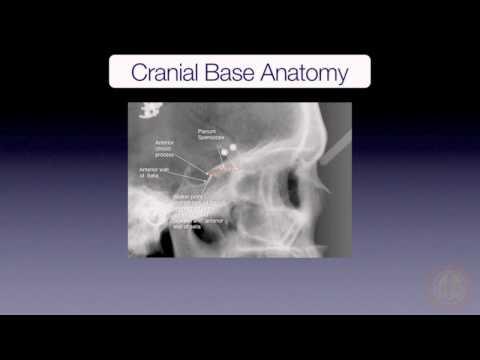 Cranial Base Superimposition