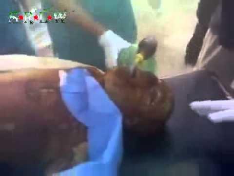 +18 Syrien  Aleppo Land  Brandbomben auf das Dorf Al Kubra Orm  26 08 2013