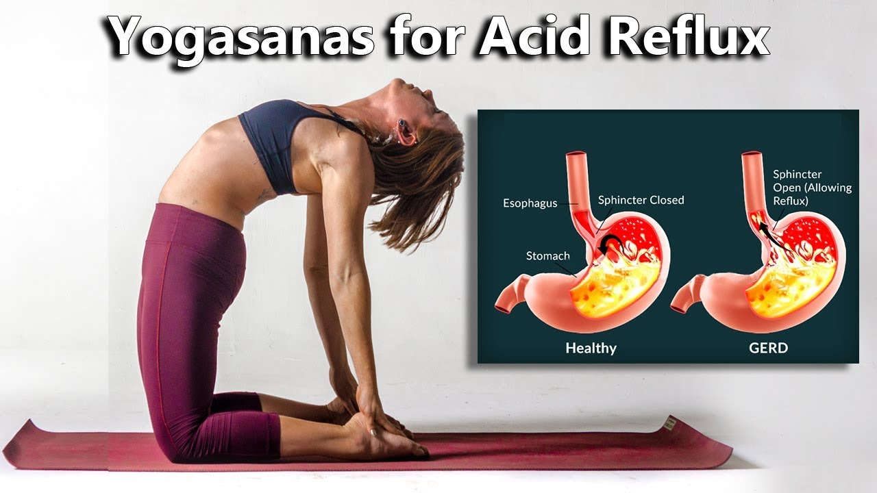 30 Yogasanas for Acid Reflux