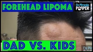 Who's the BIGGER Popaholic?  A Lipoma on the Forehead