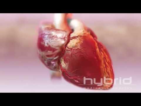 infarto-agudo-del-miocardio