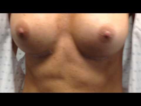 MENTOR® MemoryShape™ Breast Implants