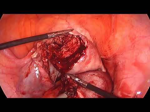 Laparoscopic Approach to cornual ectopic a step by step demonstration F&S