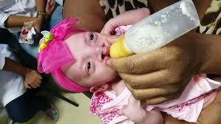Adaptação da alimentação em um bebê com fissura transforame incisivo bilateral - Fonovim