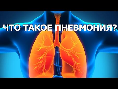 Что такое пневмония и как её лечат?