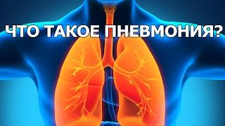 видео Пневмония