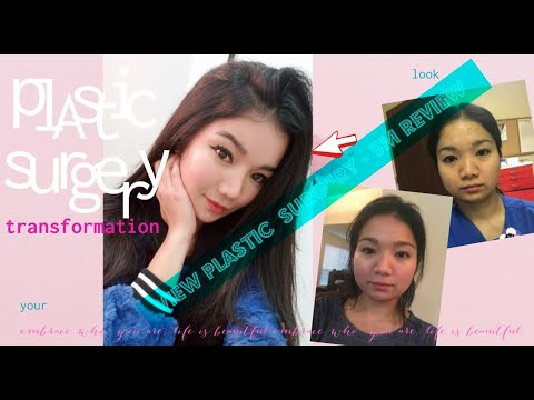 5 Month Plastic Surgery Review - Kristine VIEW PLASTIC SURGERY, Korea