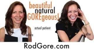 Smile Makeover with Veneers in Scottsdale, Arizona by Dr. Rod Gore