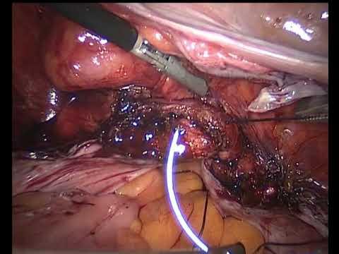 Pdf Laparoscopicassisted Uterovaginal Anastomosis For Uterine Cervix
