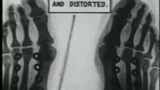 X-ray Shoe Fit Check 1920s