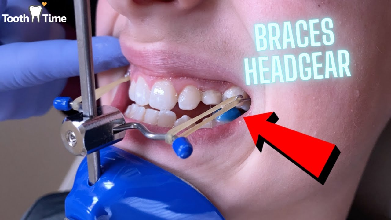 Download Headgear Braces - Orthodontic Appliance - 11 Year old patient - Tooth Time New Braunfels Texas