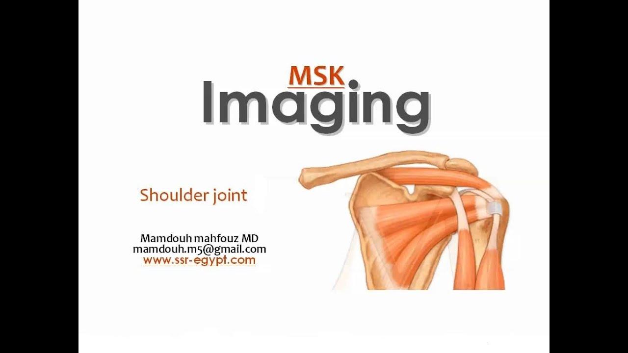 Shoulder Imaging part 2 - Labral pathology - Dr Mamdouh Mahfouz ...