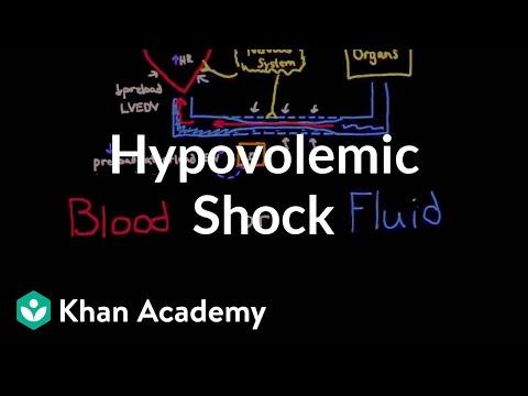 Hypovolemic shock | Circulatory System and Disease | NCLEX-RN | Khan Academy
