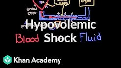 hqdefault - Hypovolemic Shock And Kidney