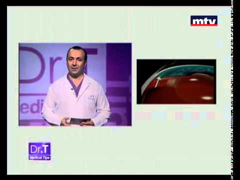 Glaucoma Beirut Lebanon -  Dr T Medical Tips