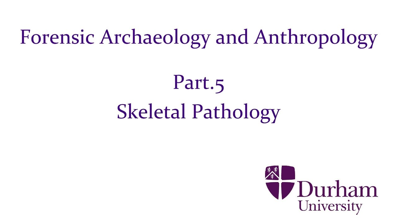 Forensic Archaeology And Anthropology Part 5 Skeletal Pathology Youtube