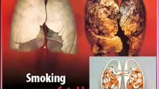 видео Альтернатива курению