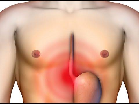 Горечь в горле - Причины и лечение