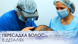 видео Современные методы и технологии пересадки волос