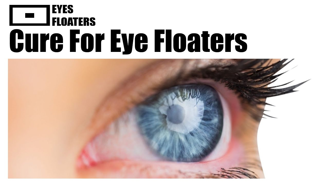 how to clear eye floaters