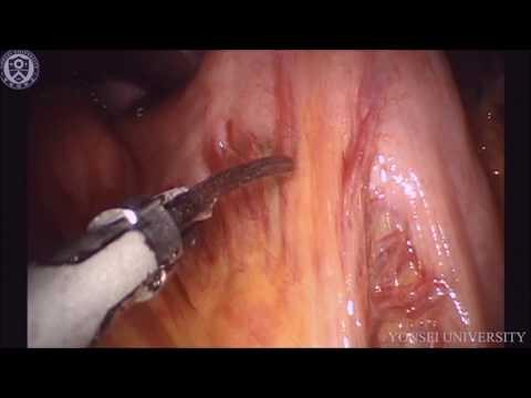 Robotic Total D2 Gastrectomy