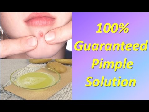 how to remove pimples overnight acne treatment 100% guaranteed