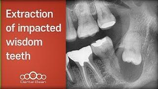 [Dentalbean] Extraction of impacted wisdom teeth