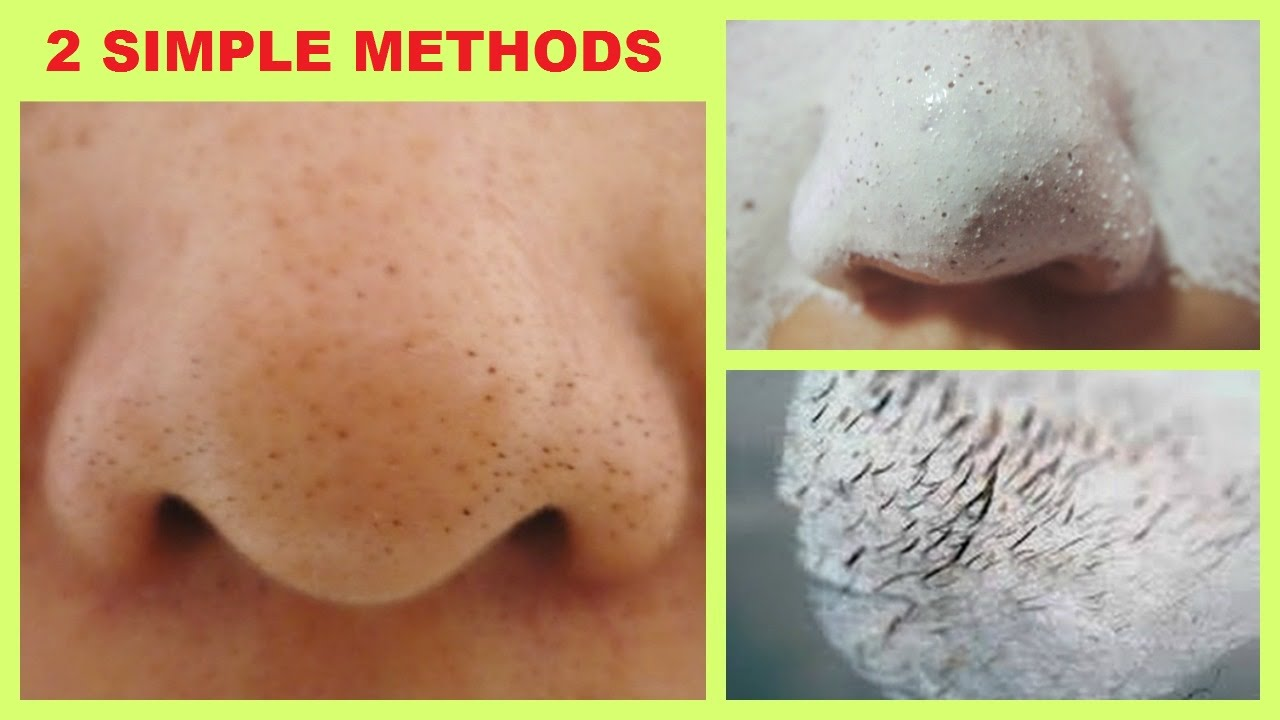 How To Remove Black White Heads From Nose Face 2 Ways