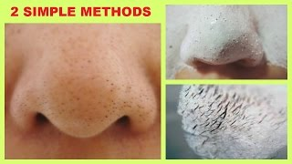 How to Remove Black/white heads From Nose & Face   2 WAYS